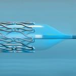 Laser Plastic Welded Catheter